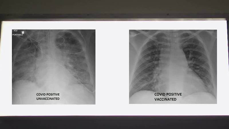 A St. Louis doctor says a set of X-rays shows the difference getting vaccinated against...